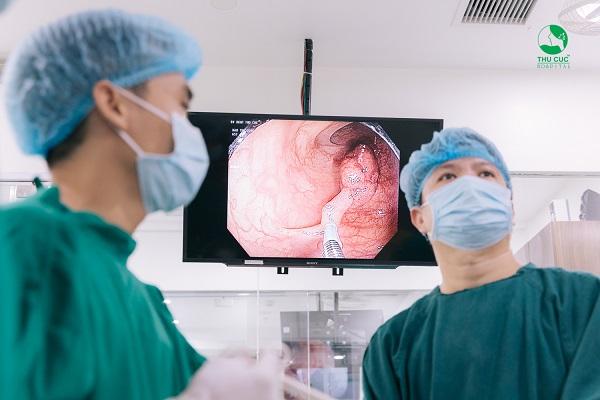 Nội soi đại tràng là phương pháp tốt nhất phát hiện polyp đại tràng, đặc biệt là công nghệ nội soi NBI 5P