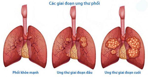 Chỉ số PDW cao có thể là biểu hiện của bệnh gây ung thư phổi. (ảnh minh họa)