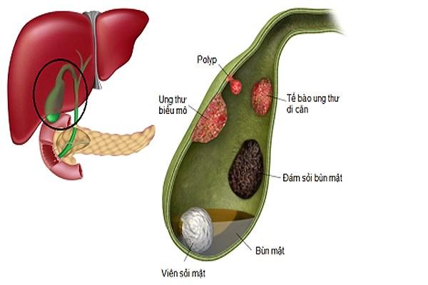 Polyp túi mật là những u thịt thừa phát triển bên trong túi mật