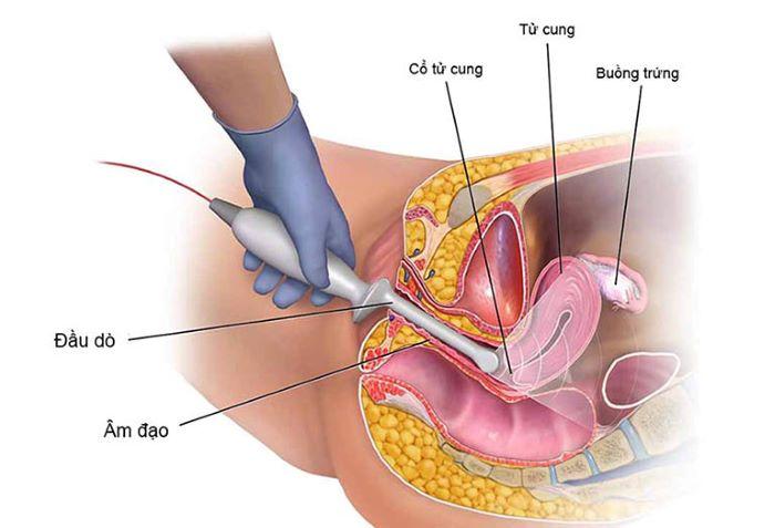 Siêu âm đầu dò âm đạo là phương pháp thăm khám phụ khoa phổ biến và an toàn nhất hiện nay.
