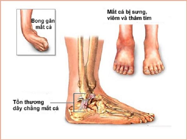 nguyên nhân gây đau nhức mu bàn chân