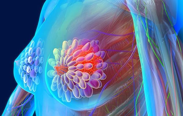 biểu hiện của ung thư vú