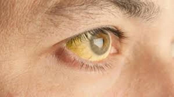 Bệnh viêm gan A thường ít biểu hiện ra bên ngoài, một trong những dấu hiệu dễ thấy là người bệnh bị vàng mắt. (ảnh minh họa)