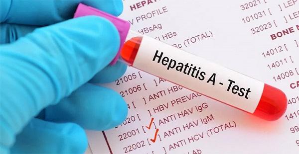 Xét nghiệm hAV thường tiến hành xét nghiệm 2 loại chỉ số kháng thể HAV IgM và kháng thể HAV IgG