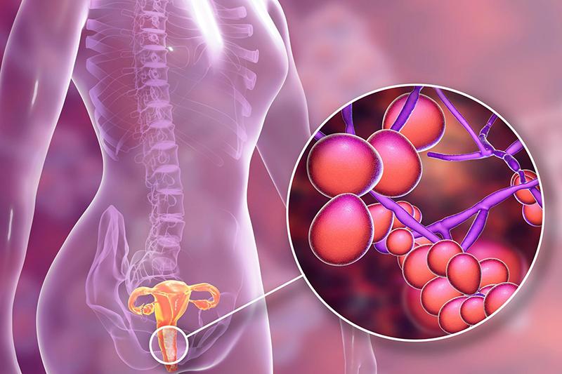 Candida albicans là loại nấm có hại nhất trong âm đạo phụ nữ.
