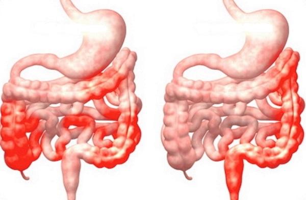 So sánh vị trí viêm của bệnh Crohn (bên trái) và viêm đại tràng (bên phải)
