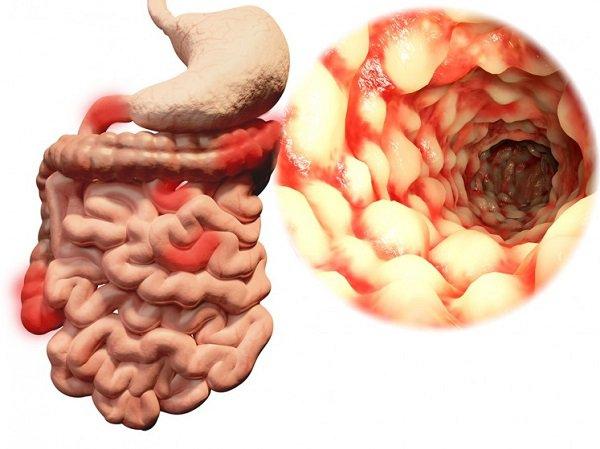 Nếu không được phát hiện và điều trị sớm, bệnh Crohn có thể dẫn đến nhiều biến chứng nguy hiểm