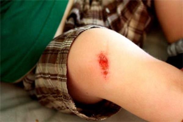 Chấn thương nếu không được xử trí tốt có nguy cơ nhiễm vi khuẩn gây nhiễm trùng máu