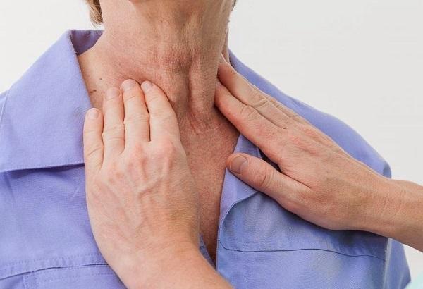 Nổi hạch ở cổ có thể là triệu chứng của