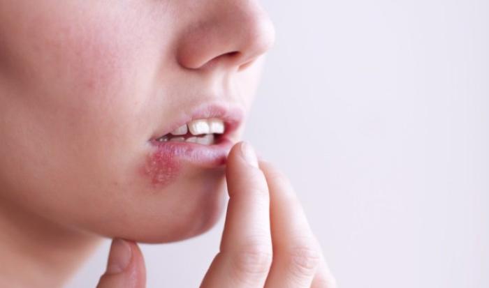 HSV loại 1 thường xuất hiện ở mắt hoặc quanh miệng.