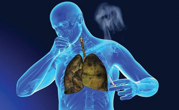 ung thư phổi là căn bệnh nguy hiểm