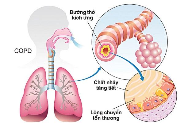 nguyên nhân gây bệnh phổi ắc nghẽn mạn tính