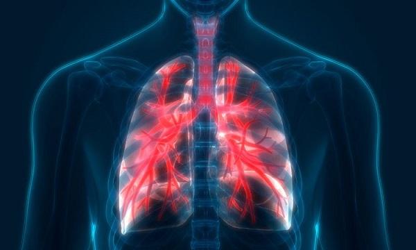trieeujc hứng bệnh phổi tắc nghẽn mạn tính