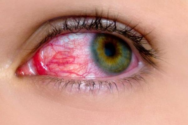Biểu hiện đau mắt đỏ là như thế nào?