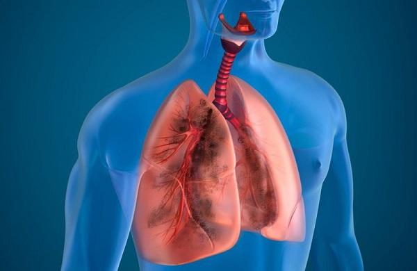 bệnh phổi tắc nghẽn mạn tính có nguy hiểm không?