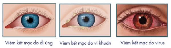 Nguyên nhân gây đau mắt đỏ do: virus, vi khuẩn, dị ứng