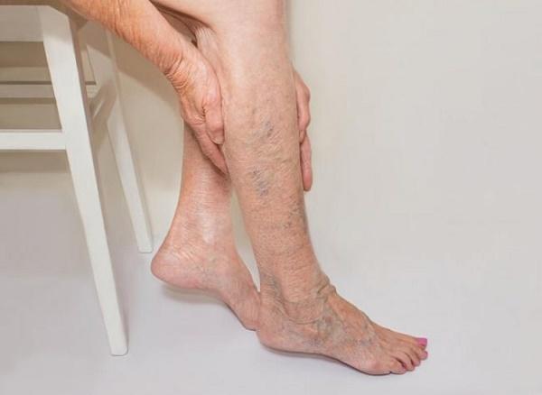 Biểu hiện suy giãn tĩnh mạch chân: đau chân, nặng chân, mỏi chân, phù nhẹ, chuột rút, nhức chân có cảm giác như có kiến bò ở chân, châm chích