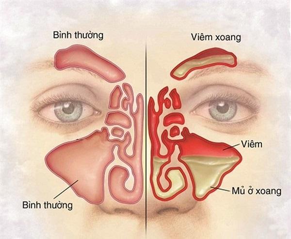 Viêm xoang là tình trạng viêm nhiễm ở xoang do các tác nhân gây bệnh