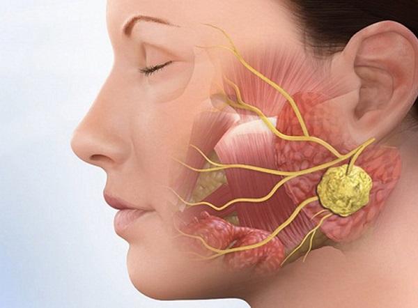 Nuốt nước bọt đau họng có thể là biểu hiện của ung thư vòm họng