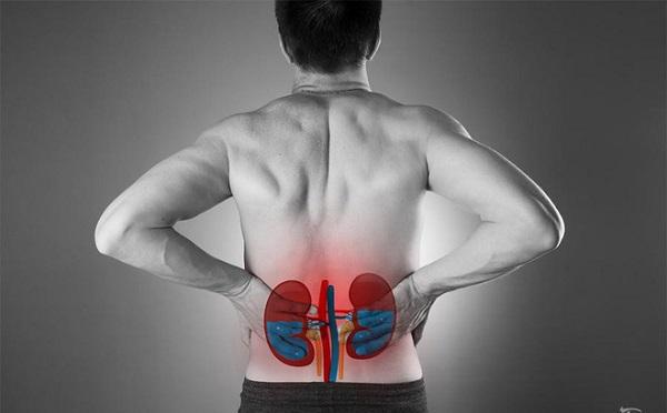 Những cơn đau lưng báo hiệu thận ứ nước