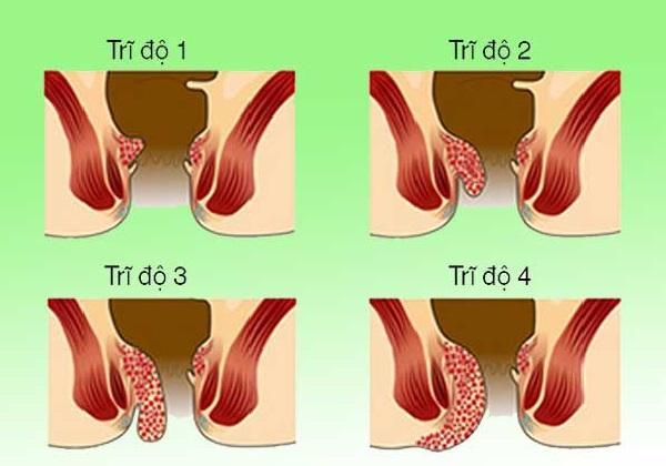 4 mức độ của bệnh trĩ nội