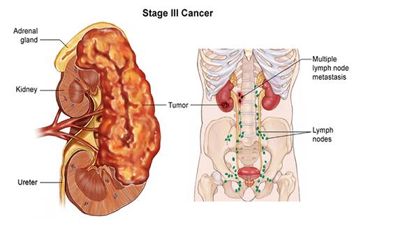 Ung thư thận do những biến đổi bất thường về gen