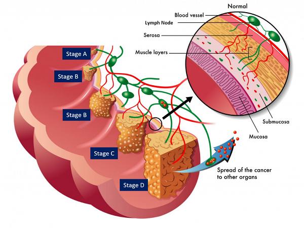Các giai đoạn của ung thư trực tràng