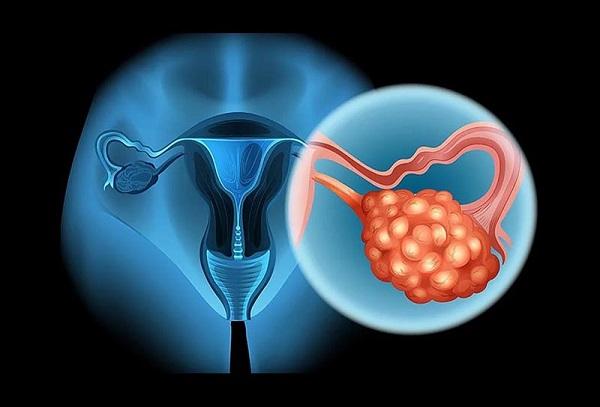 Nang buồng trứng xuất hiện ở chị em trong độ tuổi sinh sản