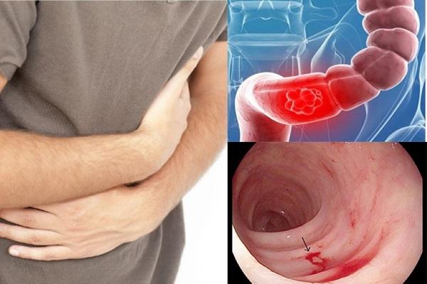 Xuất huyết tiêu hóa là một trong những biến chứng vô cùng nguy hiểm của các bệnh lý tại ống tiêu hóa