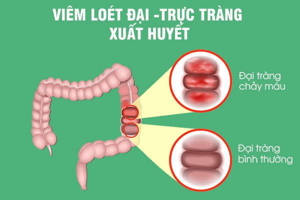 Một trong những nguyên nhân gây xuất huyết tiêu hóa dưới là viêm loét đại trực tràng xuất huyết