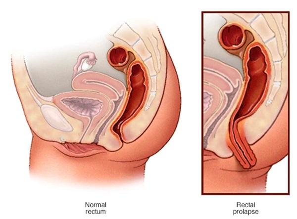 Sa trực tràng xảy ra khi trực tràng trượt khỏi vùng chậu và thò ra ngoài qua hậu môn.