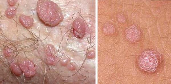 Virus HPV là nguyên nhân gây nên bệnh sùi mào gà, mụn cóc sinh dục