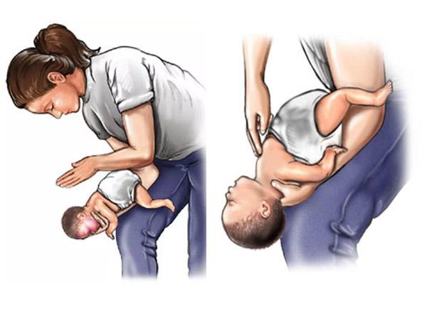 Phương pháp Heimlich giúp xử lý tình huống trẻ hóc chất trớ, dị vật