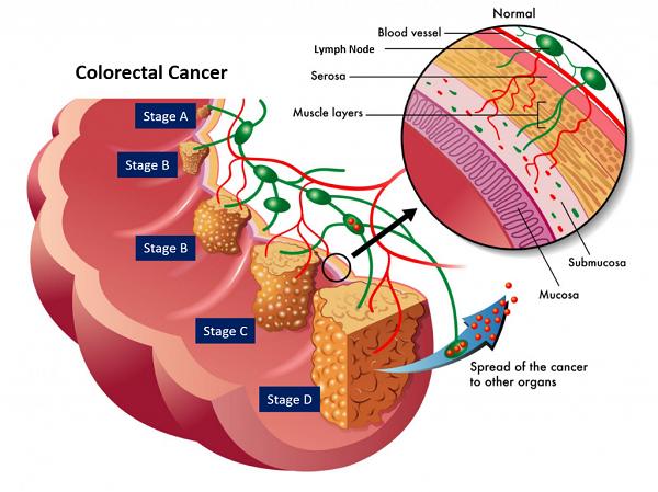 """Câu trả lời cho câu hỏi """"Ung thư đại tràng sống được bao lâu"""" phụ thuộc vào giai đoạn ung thư"""