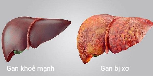 Xơ gan là nguyên nhân phổ biến dẫn đến giãn tĩnh mạch thực quản