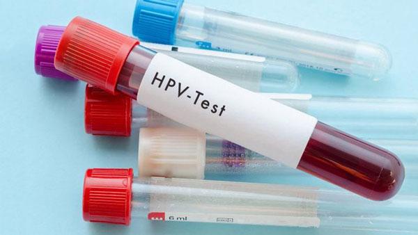 Xét nghiệm HPV là một phương pháp tầm soát ung thư cổ tử cung phổ biến