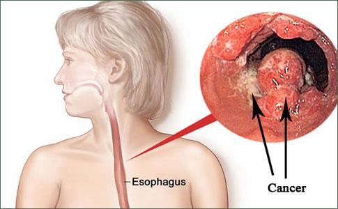 Ung thư thực quản giai đoạn cuối là khi tế bào ung thư đã lan đến hạch bạch huyết và các cơ quan khác như phổi, gan, xương,...