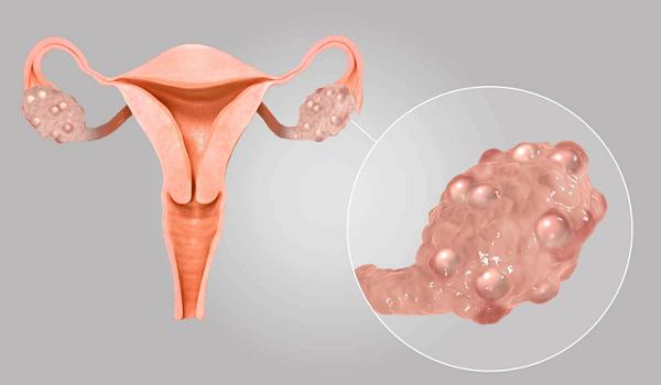 Hội chứng đa nang buồng trứng không hiếm gặp ở chị em phụ nữ