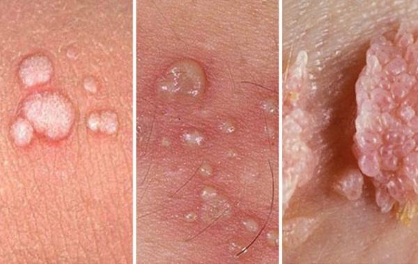 Một số hình ảnh mụn cóc sinh dục do bệnh sùi mào gà