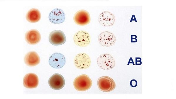 Xét nghiệm nhóm máu giúp bạn biết mình thuộc nhóm máu nào