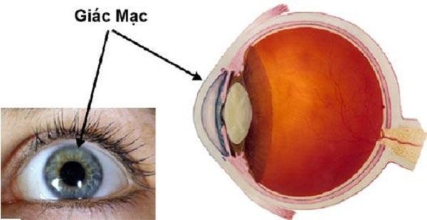 Giác mạc mắt là gì