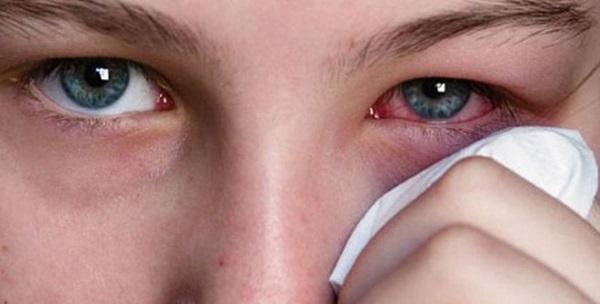 Triệu chứng viêm giác mạc mắt bạn cần phải biết