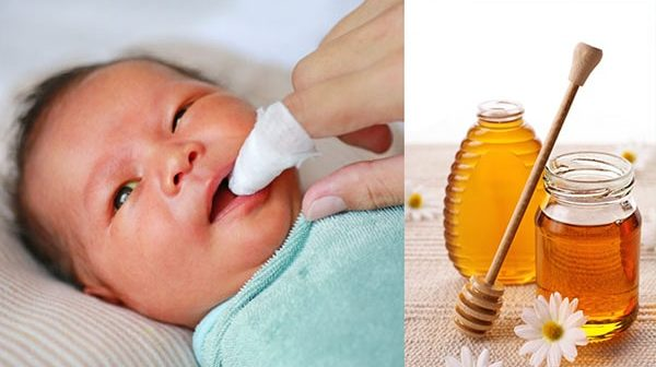 đánh tưa lưỡi cho trẻ dưới 1 tuổi bằng mật ong