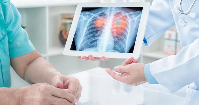 Επεμβατική πνευμονολογία