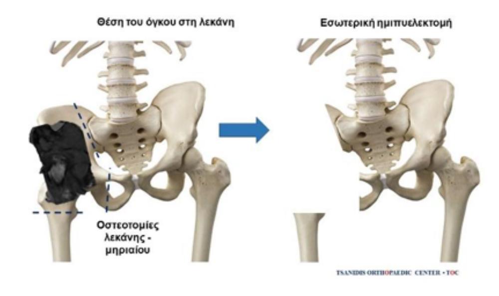 Όγκοι Μυοσκελετικού - Εσωτερική ημιπυελεκτομή