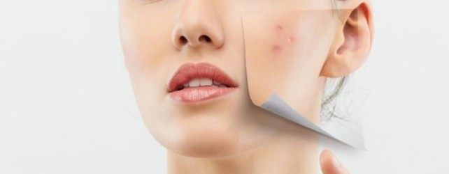Scar Removal Treatment