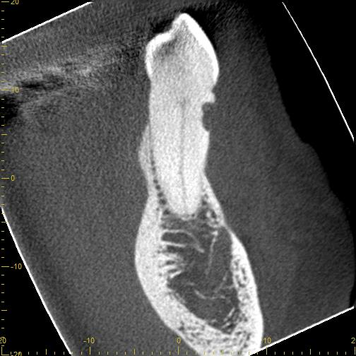 CBCT - root resorption