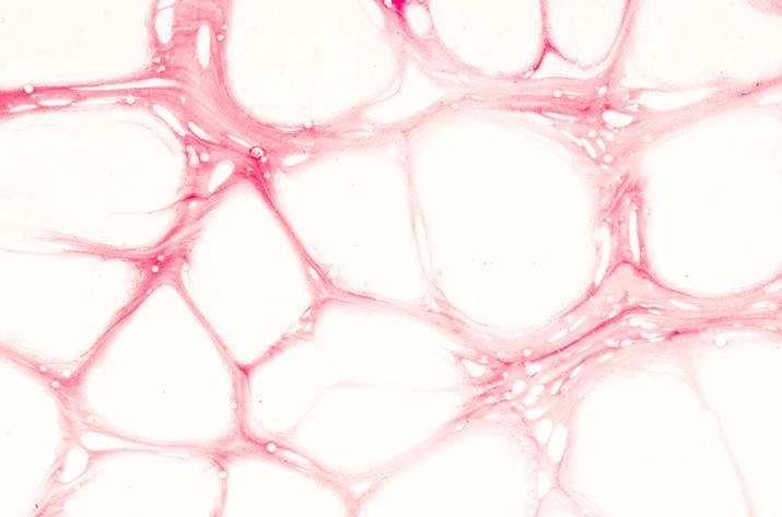 Digging Deeper on Dementia: Vascular Dementia