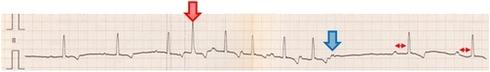 Fig. 2 急性膵炎の犬の心電図検査所見
