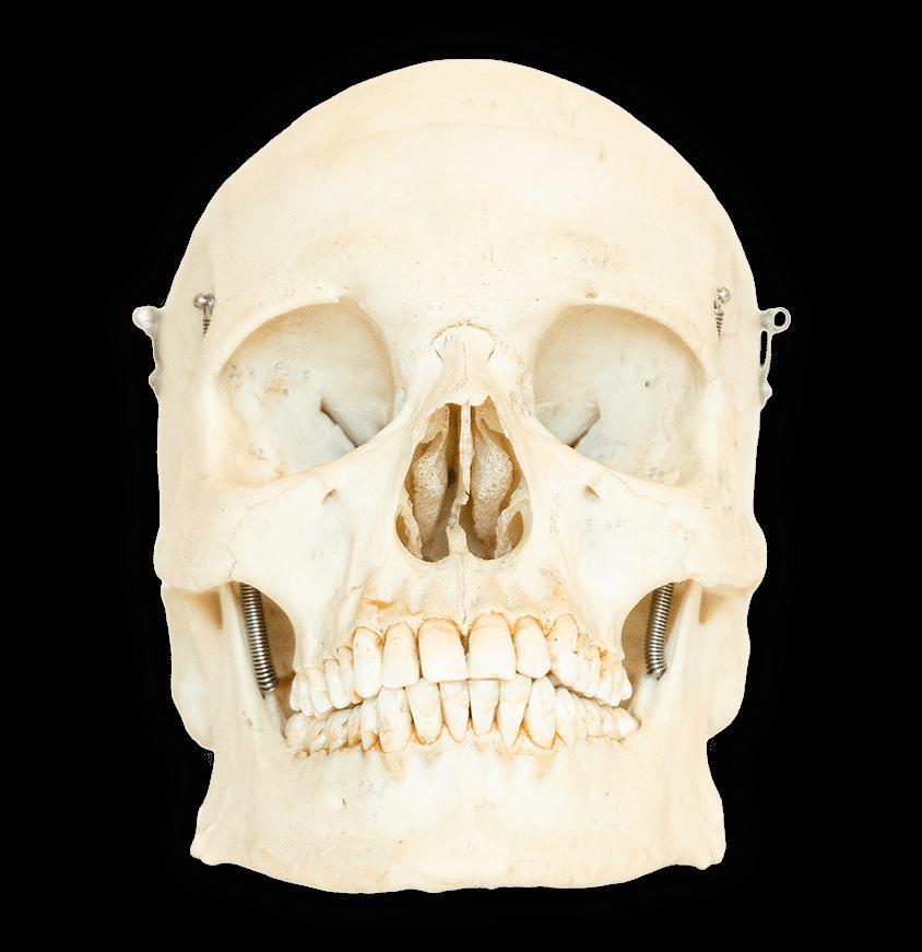 A perfect medical skull